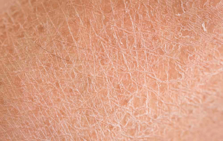 Hạn chế da khô bằng mỹ phẩm
